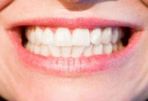 Wybielanie zębów u stomatologa to sposób na bielsze uzębienie